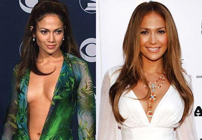 jennifer-lopez-breast-implants