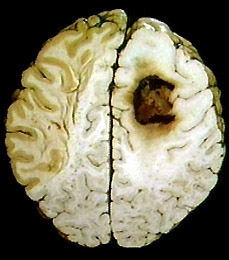 IF I had a brain, this is what the cancer would look like inside my brain!
